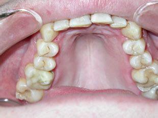 wann wachsen backenzähne gesunde z 228 hne ganzheitliche zahnmedizin bodydental