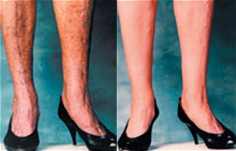 varicose veins make up cover spider veins bruising