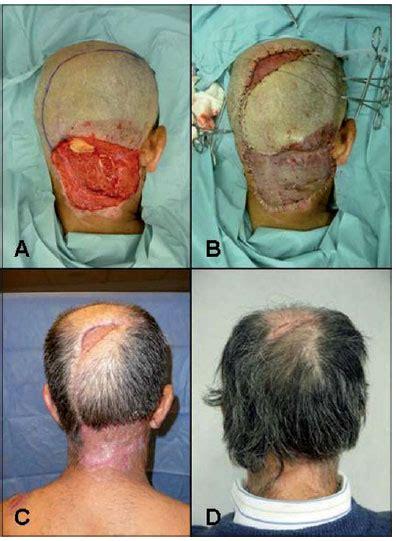 quemadura cuero cabelludo por tinte quemaduras de cuero cabelludo serie de casos y revisi 243 n