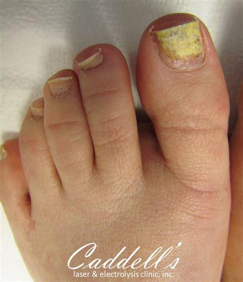Nail Image Nipomo Ca