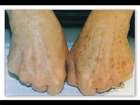 tattoo removal portland oregon skin treatments portland oregon cascade spa
