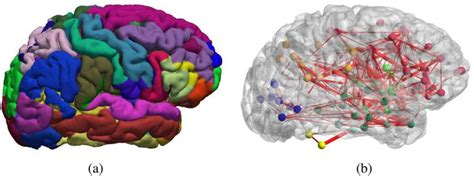 function specific  enhanced brain structural