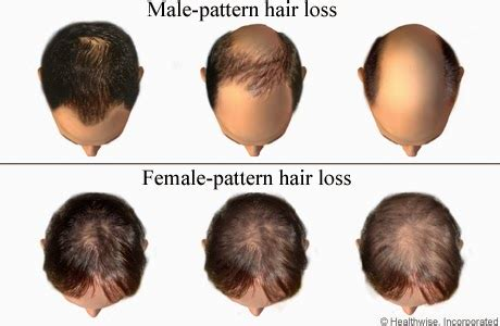 male hair loss pattern due to stress types of hair loss arganrain hair and skin care products