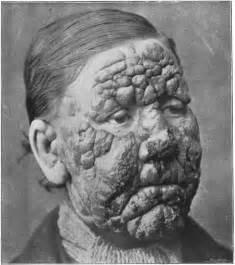Face Blindness Movie Leprosy In Louisiana Wikipedia