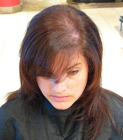 hair style to minamize top balding in woman best 25 hair cure ideas on pinterest spider vein