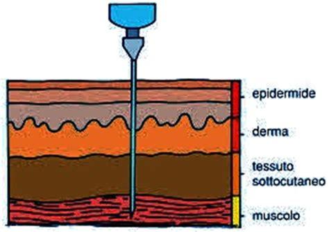 sedi iniezione intramuscolare come praticare iniezione intramuscolare rischi e