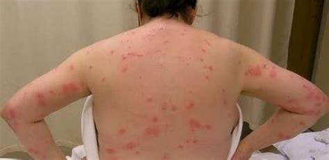 identify bed bug bites identifying bed bug bites blog cover protectcover protect