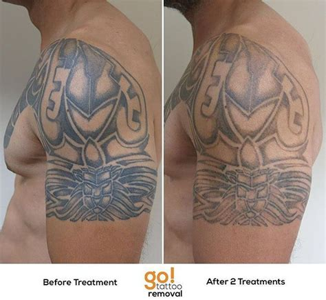 chest tattoo removal 927 best removal in progress images on