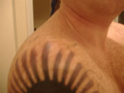 tattoo removal raised skin raised skin big planet community forum