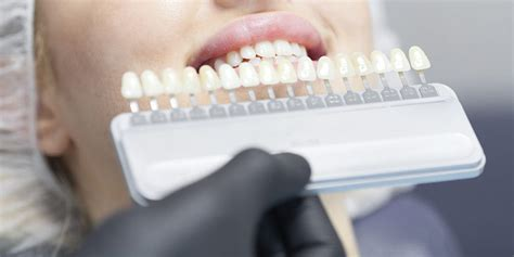 teeth whitening milton   bring brilliance   smile