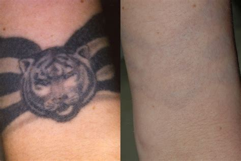 tattoo removal risks laser removal virginia david h mcdaniel