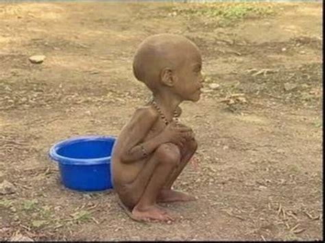 imagenes de niños que pasan hambre tirar comida a la basura millones de personas se mueren