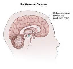 Images pics pictures and photos of parkinsons disease