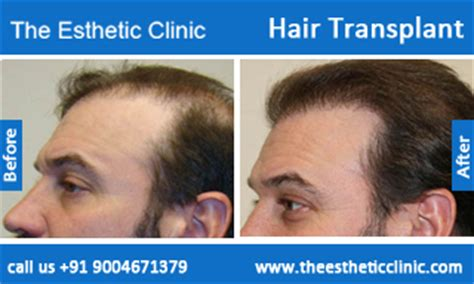 hair transplantation in mumbai reviews hair loss treatment best trichologist surgeon in mumbai