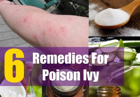 6 home remedies for poison treatments cure