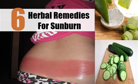 A Simple Home Remedy For Sunburn by 6 Herbal Remedies For Sunburn How To Treat Sunburn