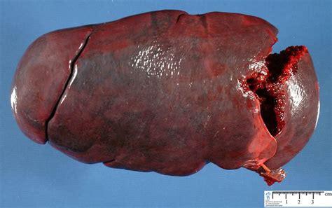 Spleen Detox Juice by 1000 Images About Enlarged Spleen On Juice
