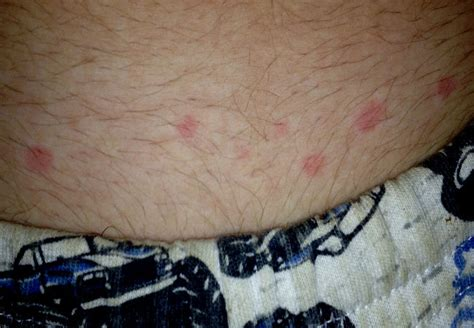 itchy in bed itchy in bed 28 images bed bug bites itchy bumps from