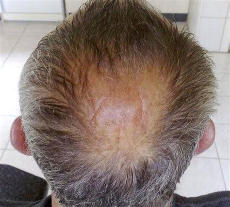 pattern hair loss in cats horseshoe pattern baldness