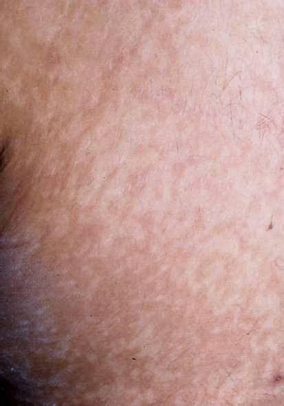 CAPITULO 37: Trastornos Pigmentarios | PIEL ... Y Chromosome