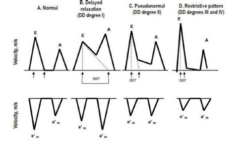 pseudonormal pattern of lv diastolic filling diastolic mitral inflow patterns pictures to pin on