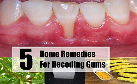 Gums Pulling Away From Teeth Home Remedy by 5 Home Remedies For Receding Gums Treatments