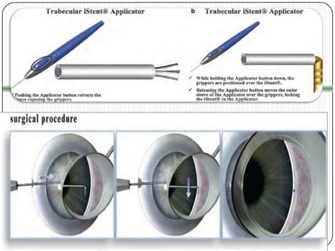 diode laser cycloablation surgery in open angle glaucoma