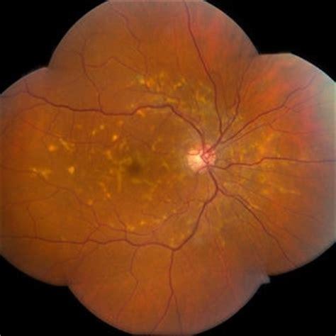 multifocal pattern dystrophy simulating stargardt disease discover images retina image bank