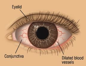 eye yellow discharge pinkeye conjunctivitis guide causes symptoms and treatment options