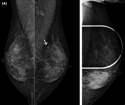 bilateral oblique mammograms  coned compression view left breast  scientific