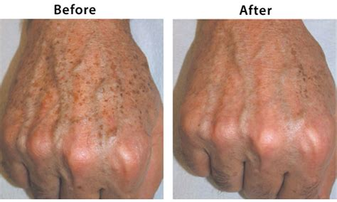 Pulsed Light Treatment by Age Brown Spot Removal Pulsed Light Ipl