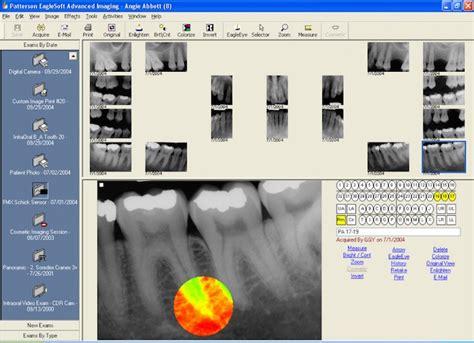 Design Programs Free top dental software 2017 reviews pricing amp demos