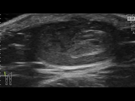 pilonidal cyst ultrasound musculo skeletal joints and tendons 6 5 hip groin and