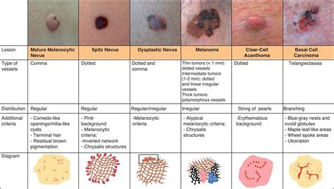 differences between malignant melanoma and a normal mole mole vs melanoma pictures to pin on pinterest thepinsta