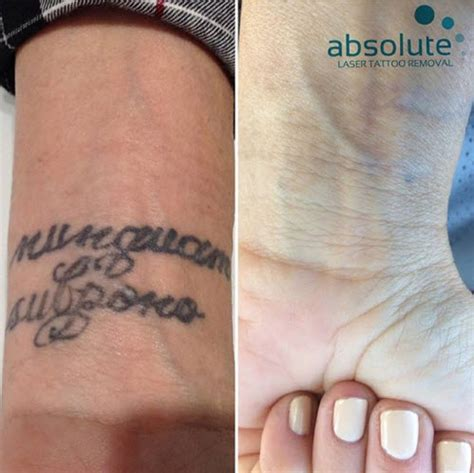 laser tattoo removal san jose gallery absolute laser removal san diego ca