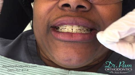 clear braces with color color ties on clear braces boca raton orthodontist