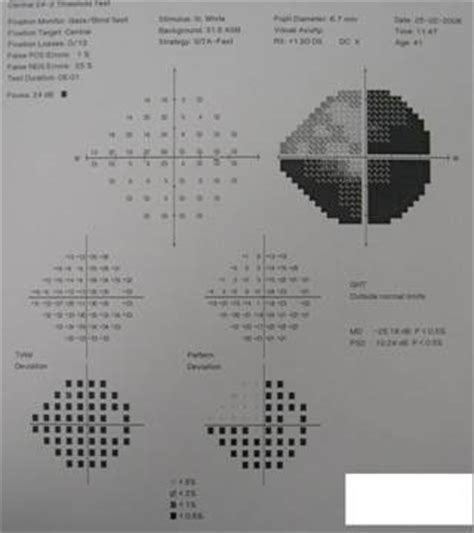 visual pattern analysis malaysian family physicians the importance of ophthalmic