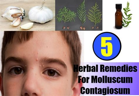 best herbal remedies to get rid of molluscum contagiosum