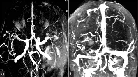 Pial Arteriovenous Fistula A Review Of Literature by An Intracranial Arteriovenous Fistula With A Large Pial Venous Varix In A A