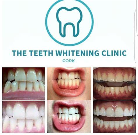 teeth whitening clinic cork cosmetic dentist  cork