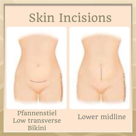 will pubic hair grow over c section scar incision options mycsection com
