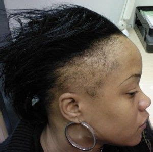 braids hairstlyes for black with thinning edges regrowing thin edges and bald spots caused by alopecia