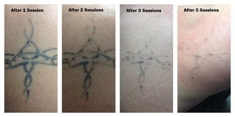 vancouver tattoo removal gastown tattoo parlour