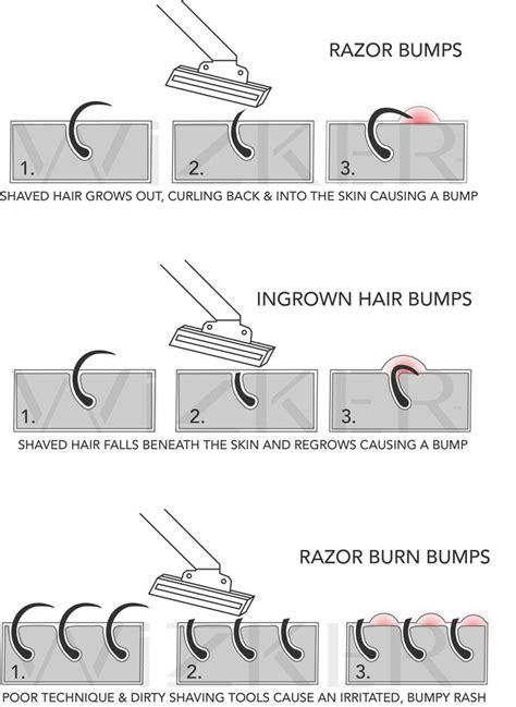 types of ingrown hair 69 best wizker wellness tips images on pinterest