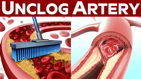 blocked arteries and open surgery clearing blocked artery without surgery