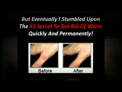 how to get rid of plantar warts 1 secret youtube