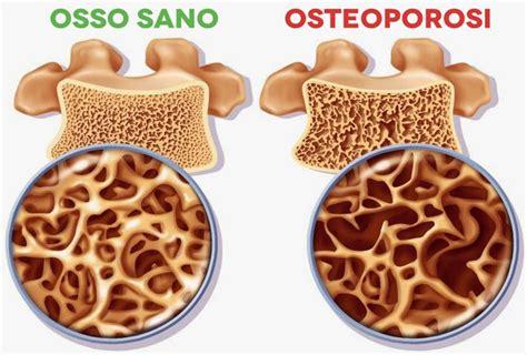 alimentazione per osteoporosi osteoporosi cause e rimedi naturali