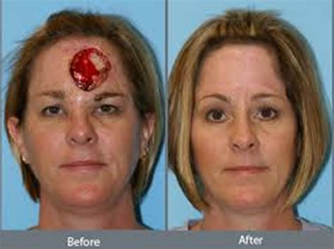 photo gallery before and after cosmetic surgeon in the image gallery reconstructive surgery