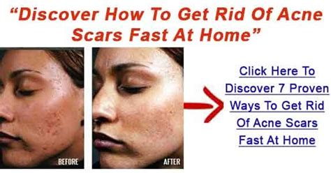 How To Get Rid Of Detox Acne Fast by Methods To Remove Pimple Marks