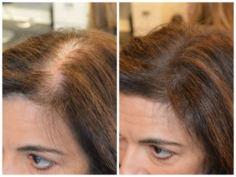women hair thinning at crown short hairstyle 2013